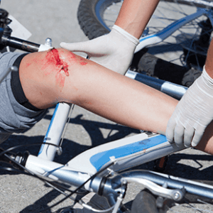 Man with Injured leg due to bicycle accident in Fort Lauderdale