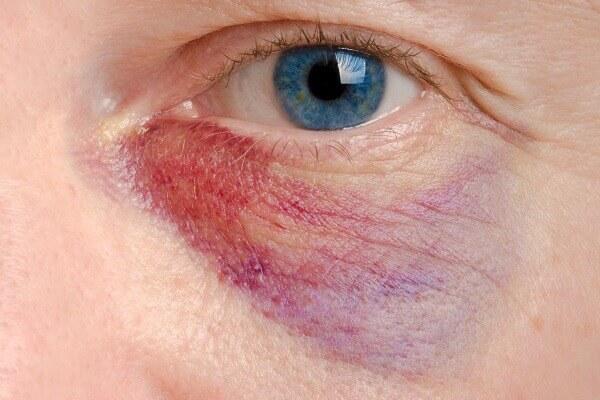 facial injury